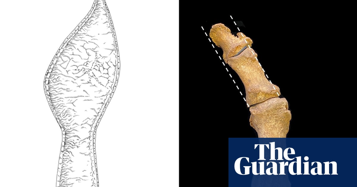 Medieval fashion for pointy shoes linked to rise in bunions
