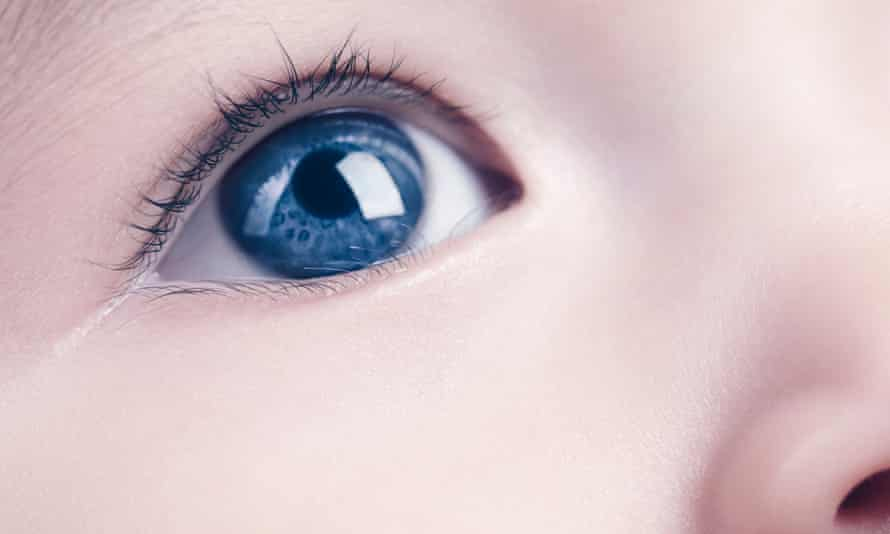 Doctors will now monitor the children to see whether their eyes develop normally, or grow fresh cataracts.