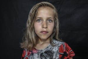 A girl, who escaped from the attacks of the Assad regime and took refuge in the Diya border camp, poses for a photograph after a volunteer hairdresser cut her hair for Eid al-Adha in Idlib.