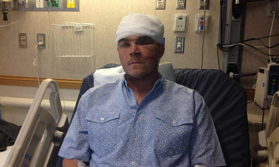 Chase Dellwo, 26, recovers in hospital after his encounter with a grizzly bear.