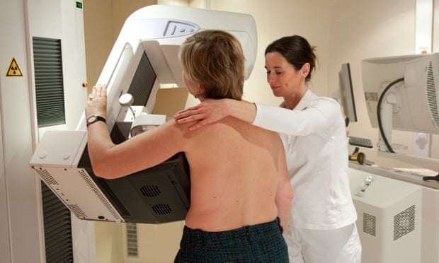 A mammography examination is performed. Researchers hope their new test will be easier to implement. Picture posed by models.