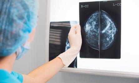 A doctor holds a mammogram.