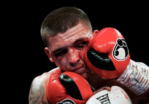 A bloodied Lee Selby in his fight with Omar Douglas at the O2 Arena in London on 23 February.