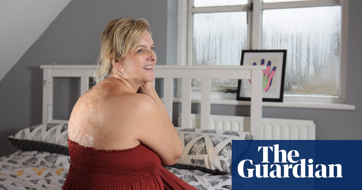 Living With Disfigurement I M Proud Of My Scars Life
