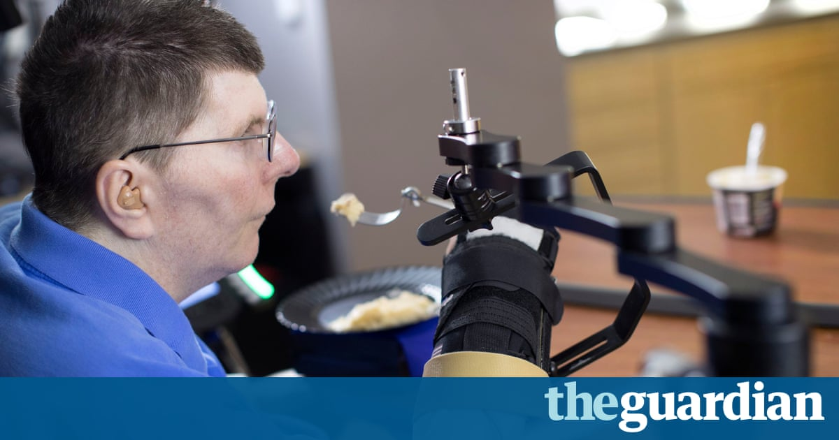 Image result for New technology allows tetraplegic man to move hand with thought
