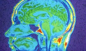 MRI scan of brain, close-up.