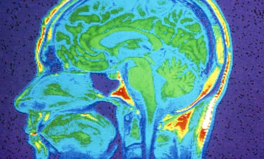 an MRI scan of a brain.