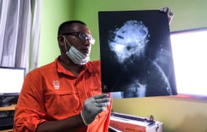 An activist at the Centre for Orangutan Protection examines an x-ray of a male orangutan found dead with his body riddled 130 airgun pellets and machete wounds in Bontang, East Kalimantan