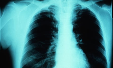 X ray of an asthmatic patient's chest.