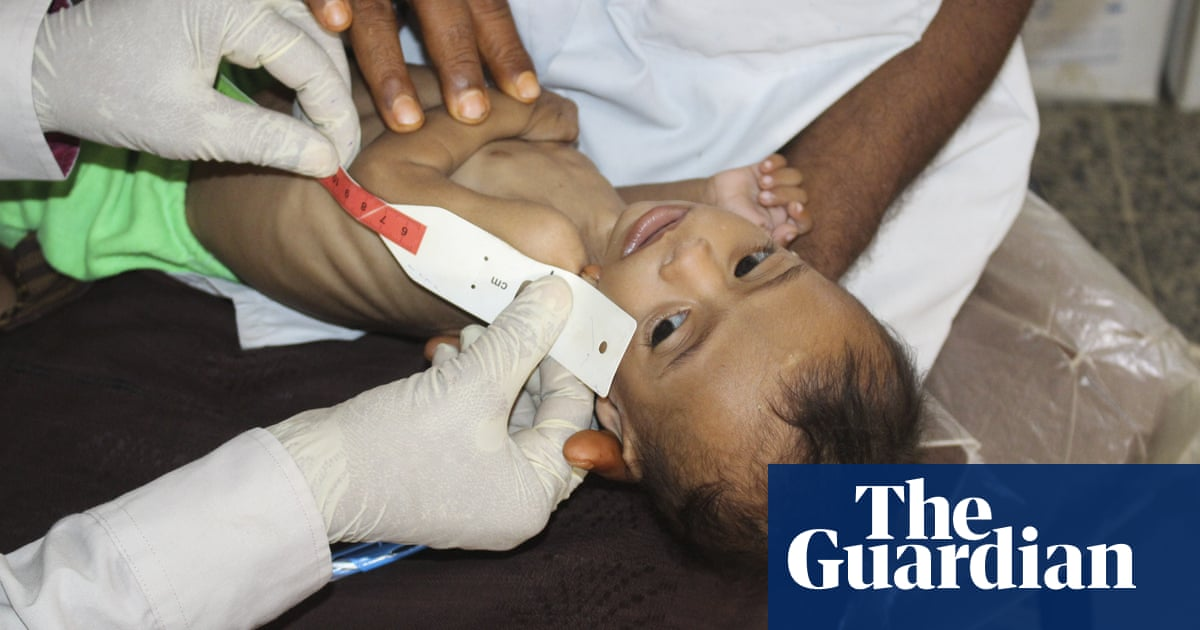 UK aid cuts will put tens of thousands of children at risk of famine, says charity - The Guardian