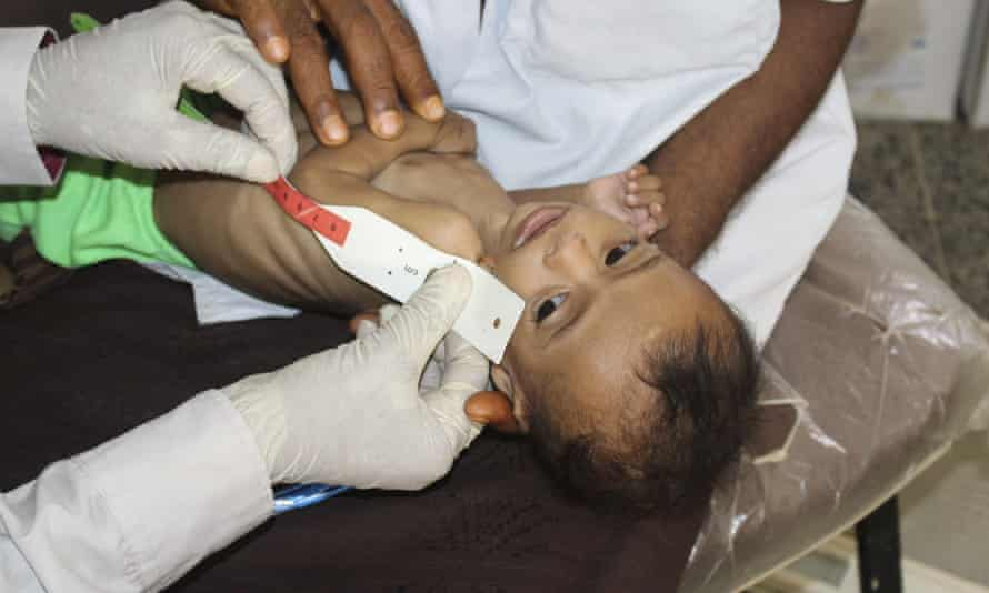 A seven-month-old baby is measured at a clinic in Deir Al-Hassi, Yemen.