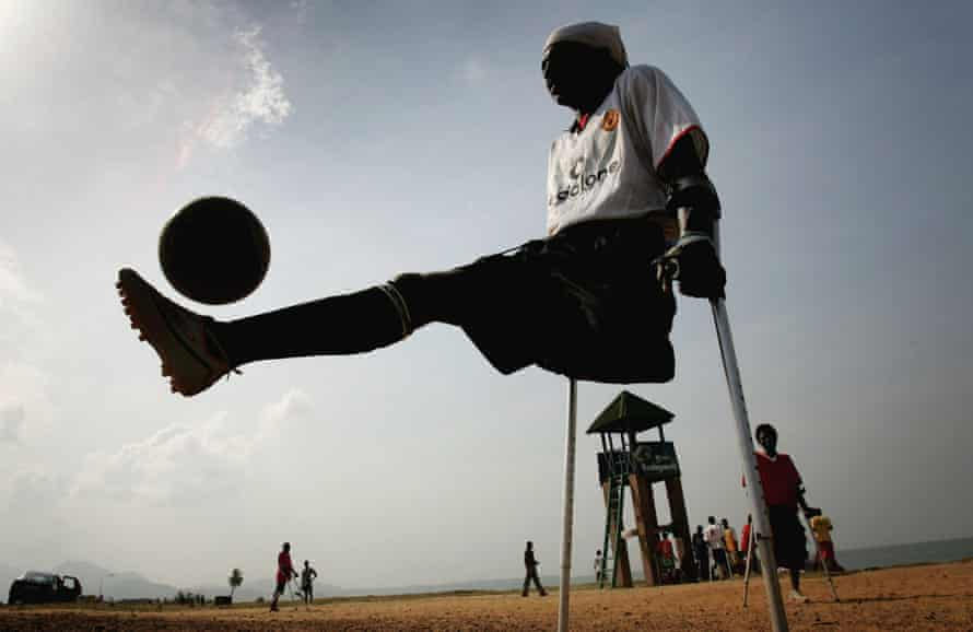 A member of the Freetown Single Limb Amputee football team in Freetown, Sierra Leone. Nearly all the players were victims of Sierra Leone's civil war.