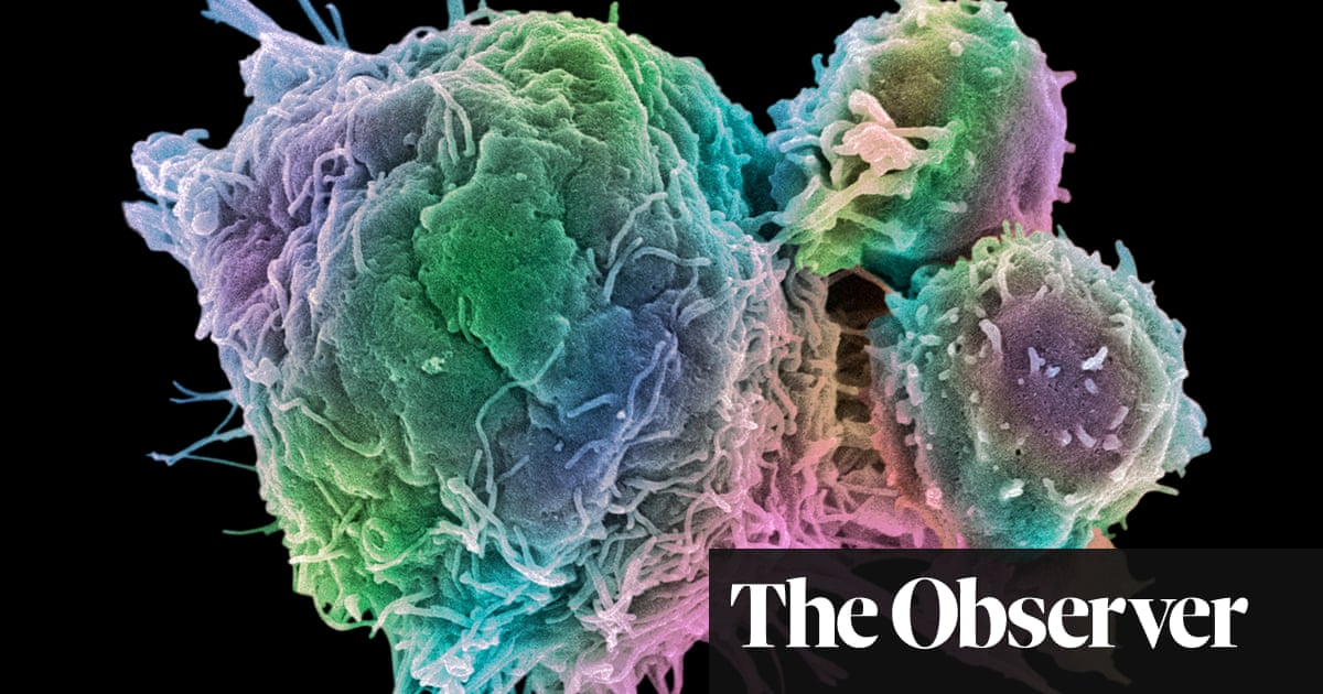 Cancer patients shed new light on rheumatoid arthritis | Science