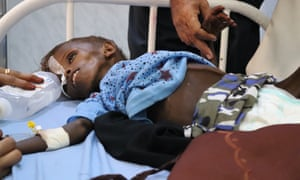 Abdulaziz al-Husseinya, Al-Thawra hospital, Hodeidah, Yemen.