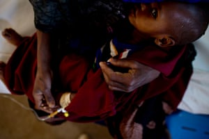 A child in the Burao clinic