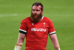 A bloodied and dejected looking Jake Ball of Wales at full time.