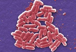 E coli bacteria