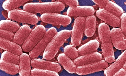 A colorised image showing a strain of the E coli bacteria.