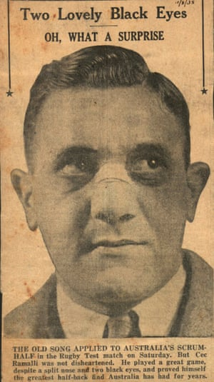 A newspaper clipping showing Cecil Ramalli sporting a broken nose and two black eyes from his Test debut for Australia against the All Blacks in Brisbane in August 1938.