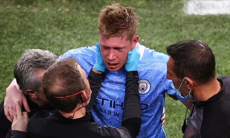 Kevin De Bruyne left eye shows the effects of a challenge by Antonio Rüdiger during Manchester City's Champions League final defeat by Chelsea.