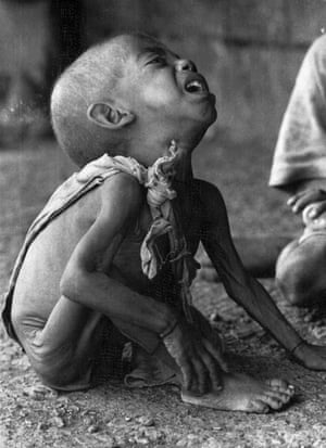 A child in a feeding centre in Alamata, during the Ethiopian famine, October 1984.