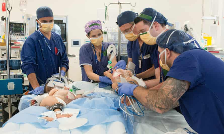 Conjoined twins Nima and Dawa during the successful separation surgery