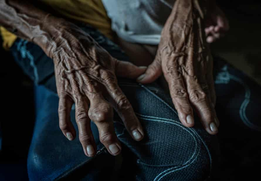 85 year old, Remy Fernandez's hands