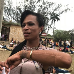 Shannel Smith shows the scar on her arm after a metal plate was inserted. As a trans woman, she suffered discrimination and attacks in her native Honduras.