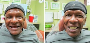 Before and after photos of dentistry.