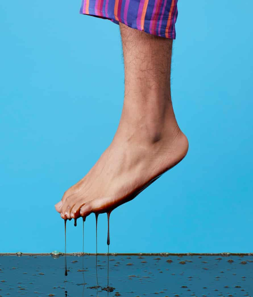 One leg of man wearing pyjama bottoms with bare foot dripping treacle