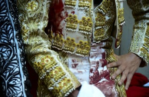 The bloodied Colombian bullfighter Juan de Castilla rests at the Macarena bullring in Medellin, Colombia