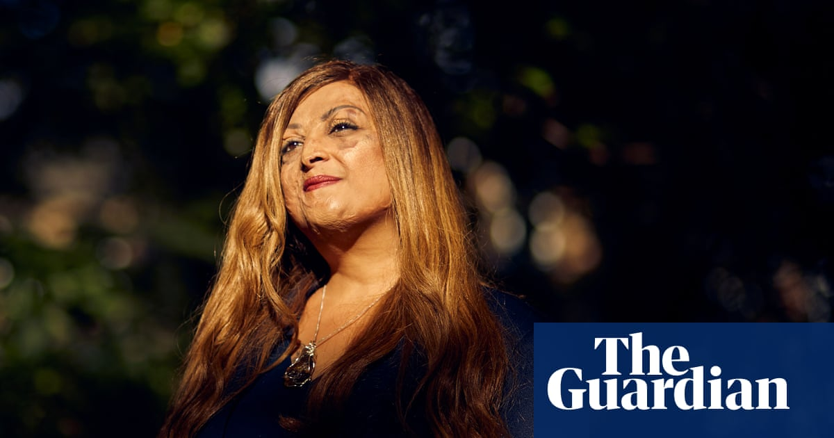 Tulsi Vagjiani: the woman who lost her family in a plane crash – and found the beauty in her burns