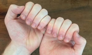 Man with back of hands flat on a wooden table curling his fingers towards his palms so the camera can see what his nails look like