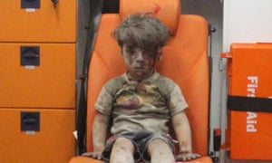 Omran Daqneesh was depicted stunned and sitting alone in the back of an ambulance after an airstrike.