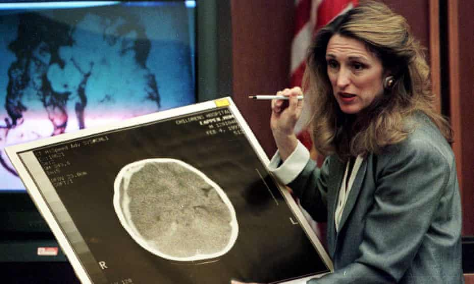 A neuro-radiologist presenting a brain scan during the trial of Louise Woodward in 1997.