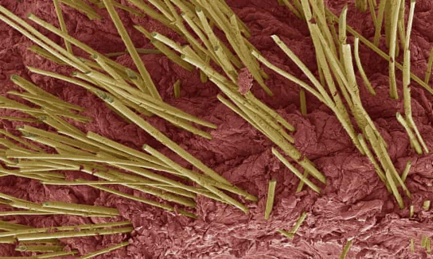 Scientists seeking to replicate human skin, pictured, have grown functional elements for the first time.