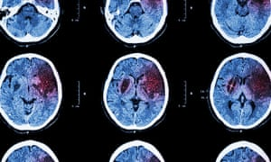 Being obese increases the risk of having an ischaemic stroke (pictured in CT) by 64%.