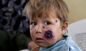 Feature about Leishmaniasis in Afghanistan.Child with cutaneous leishmaniasis awaiting treatment in Kabul, Afghanistan. Kabul harbours the largest number of cutaneous leishmaniasis patients in the world.