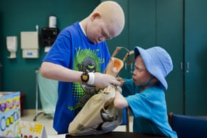 Mwigulu (left) and Baraka help each other put their prosthetic limbs in a bag after a therapy session at Shriners Hospital for Children.