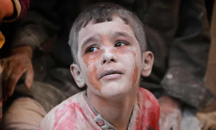 A wounded Syrian child cries in Aleppo, Syria on October 11, 2016.