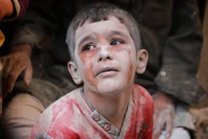A wounded Syrian boy cries after the Russian army bombed the opposition-controlled neighbourhood of Firdevs in Aleppo
