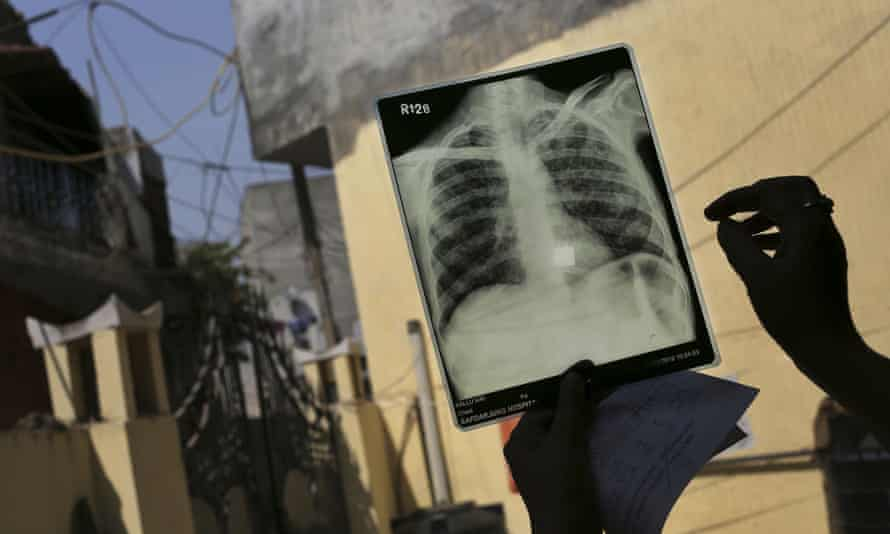 An x-ray of a patient suffering from tuberculosis is examined at a health centre in India, one of the five countries which account for more than half the world's new cases of TB.