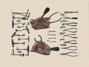 Tools and techniques (extraction and luxation), from the Traité Complet. The instruments include an oral speculum, toothkeys and cutting pliers.
