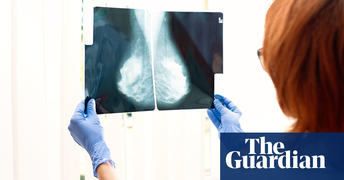Drug may help more women survive hereditary breast cancer