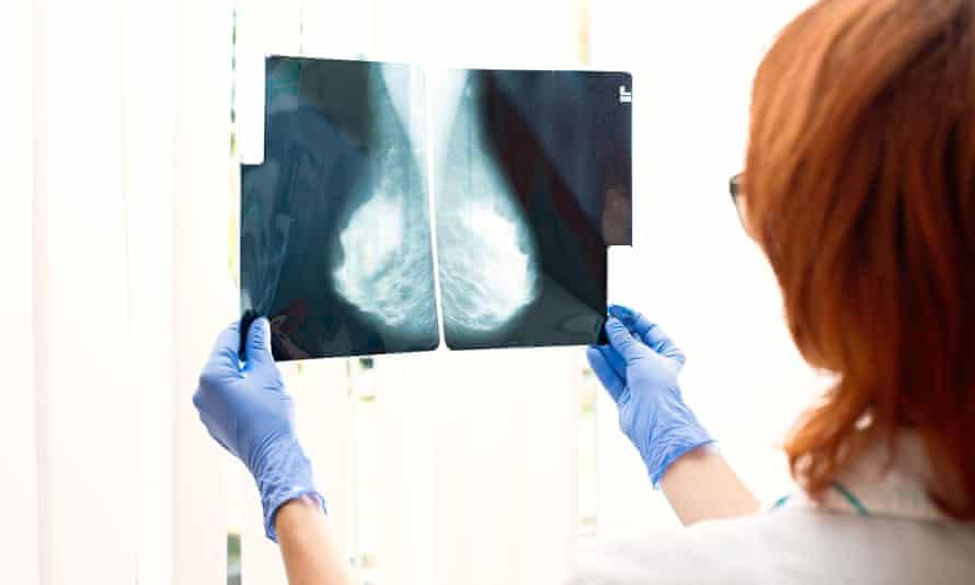 The olaparib drug cuts the likelihood of hereditary breast cancer coming back.