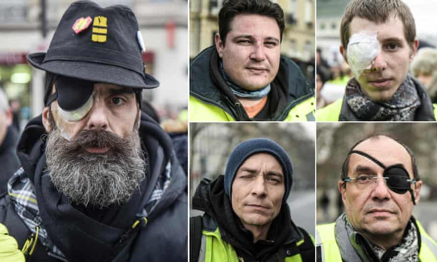 Jerome Rodrigues (L), one of the leading figures of the gilets jaunes movement, and four other protesters who claim to have been injured by police in recent months.