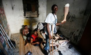 A disabled man holds up a prosthetic leg in Freetown, Sierra Leone