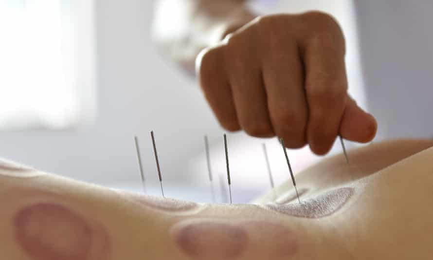 A person gets acupuncture therapy on the back