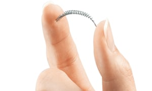 An Essure contraceptive implant