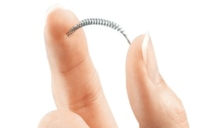 The contraceptive implant Essure. Manufacturers have been withdrawing it from markets worldwide after reports of problems from thousands of women. Composite: The Guardian design team/AP